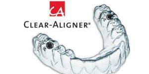 clear-aligner